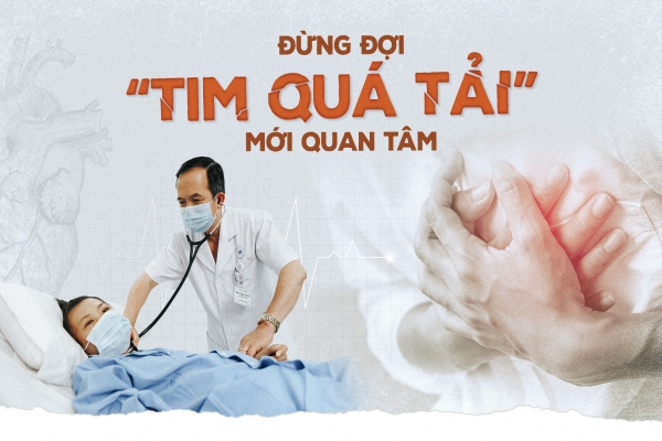 """Don't wait for """"Tim is overloaded"""" to be interested"""